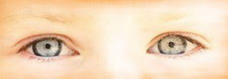 yeux guérir presbytie