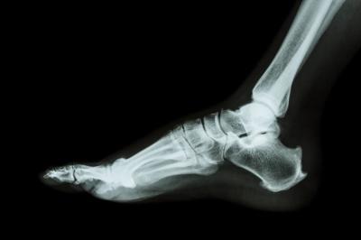 Entorse cheville : comment améliorer la mobilité du pied